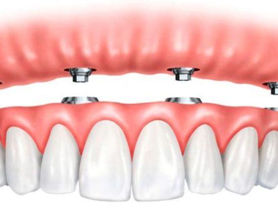 Consulta Odontológica Ibarlucea