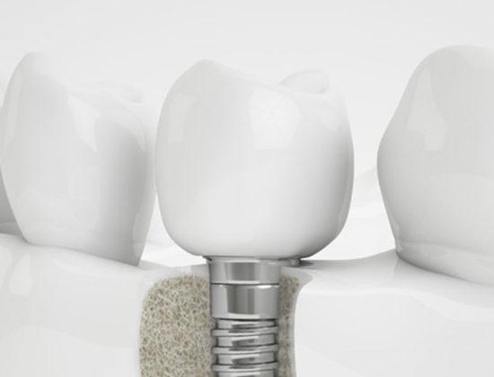 Clínica Dental Acarregui